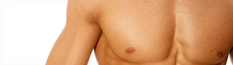 Reducción de pecho en el hombre (ginecomastia)